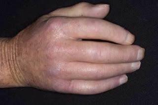 SBD - Esclerodactilia diabética
